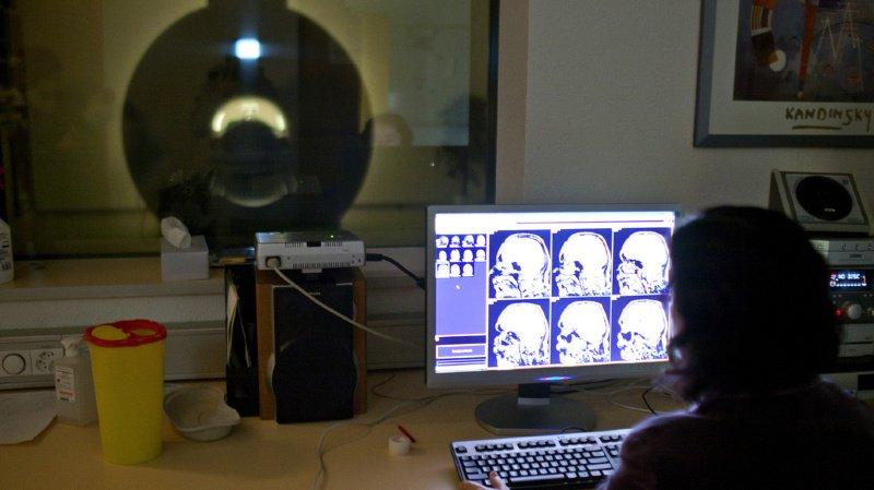 Recherche sur le cerveau: nouvelle approche contre les lésions cérébrales après un AVC
